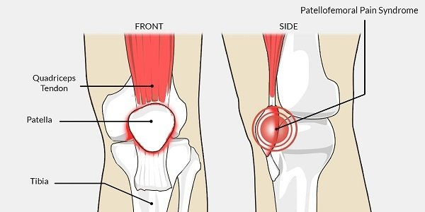 Patellofemoral Pain Syndrome.